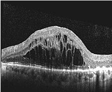 OCT-Bild der Makula eines Patienten mit großen flüssigkeitsgefüllten Zysten im Bereich der Stelle des schärfsten Sehens der Netzhaut