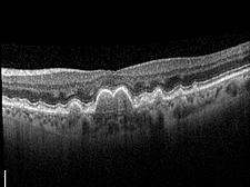 Trockene Makuladegeneration – Schnittbild der Makula mit Ablagerungen in Form von Drusen, die vor allem im Zentrum unter der Stelle des schärfsten Sehens von unten auf die darüber liegende Netzhaut drücken.
