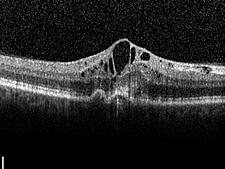 Feuchte Makuladegeneration – Schnittbild der Makula mit großen Zysten im Zentrum der Netzhaut.