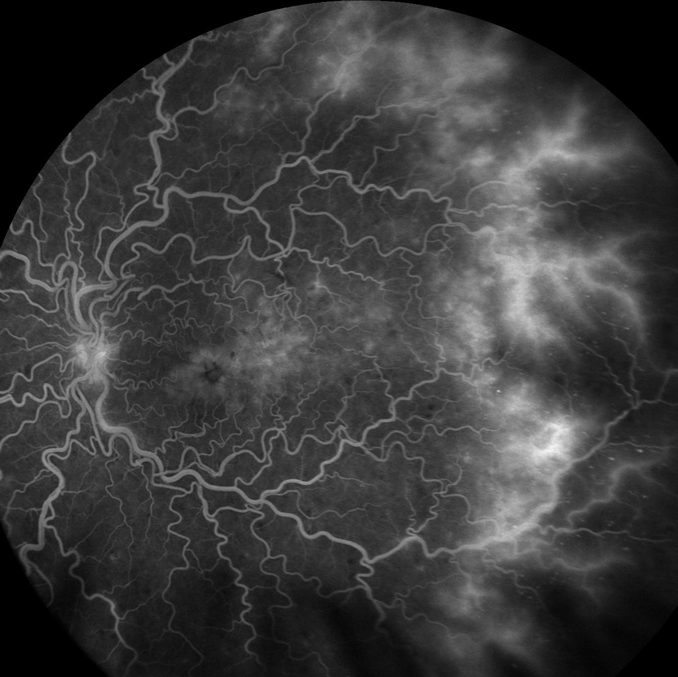 Durchblutungsstörung der Netzhaut Bild 2