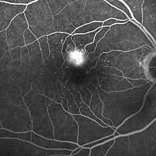 Angiographie bei feuchter Makuladegeneration (Gefäßneubildung in der Makula)