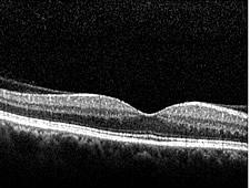 OCT-Bild einer normalen Makula (Stelle des schärfsten Sehens der Netzhaut) mit typischer zentraler Einsenkung (Fovea)