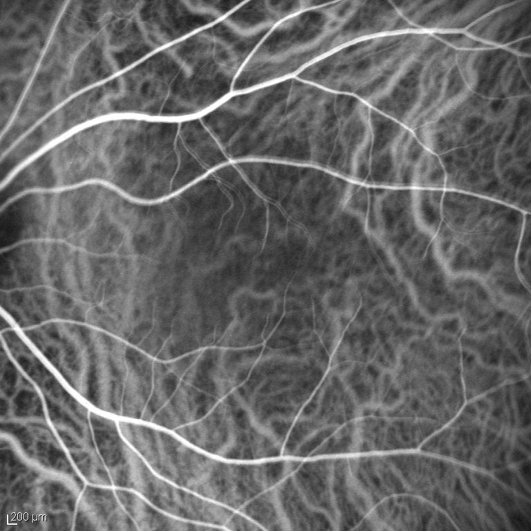 Dynamische Aderhaut-Angiographie 1