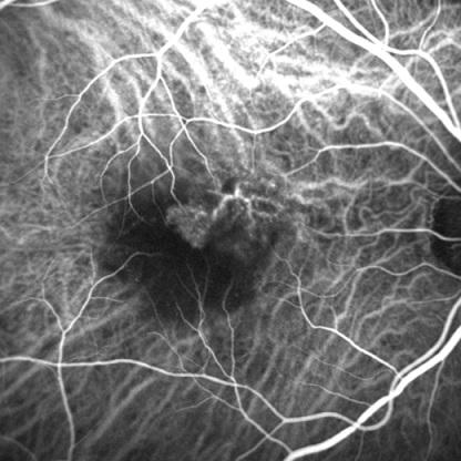 Dynamische Aderhaut-Angiographie 2