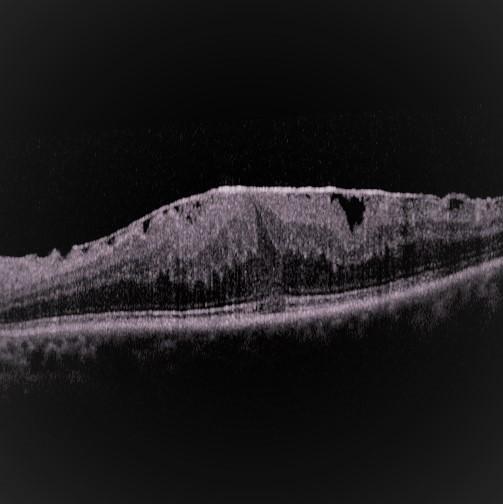 Membranbildung der Netzhaut 2