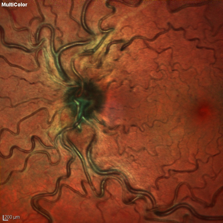 Durchblutungsstörung der Netzhaut Bild 1